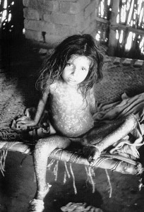 This picture is of a  boy who has had smallpox for 3 days. The virus has spread through most of his body