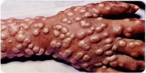 This picture is of a mans hand who has had smallpox for 5 days. The bumps have spread through the whole hand.